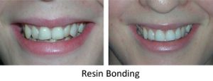 Resin bonding to improve the appearance of teeth