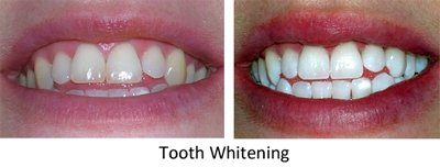 Teeth Whitening Edinburgh