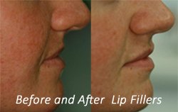 before and after lip filler- natural look