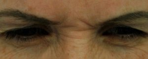glabella frown lines before treatment with Botox