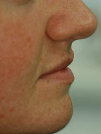 After Lip Fillers A Subtle Natural Result