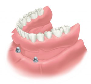 Implant Denture Stabilisation Edinburgh