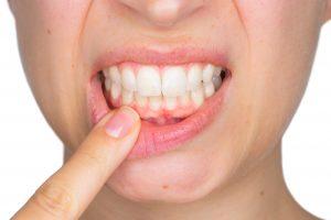 teeth, health, smile,dentist
