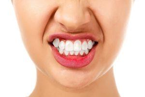 teeth,health,smile, dentist