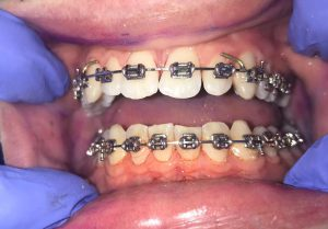 white teeth with braces on but no plaque present